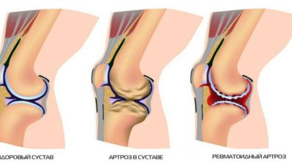 Стволовые клетки при деформирующем остеоартрозе тазобедренных суставов санаторий в снг суставы, желудок