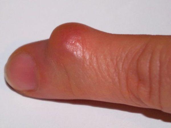 Гигрома на пальце руки лечение народными средствами