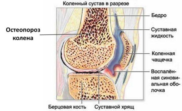 Суставный остеопороз малышева боли суставах