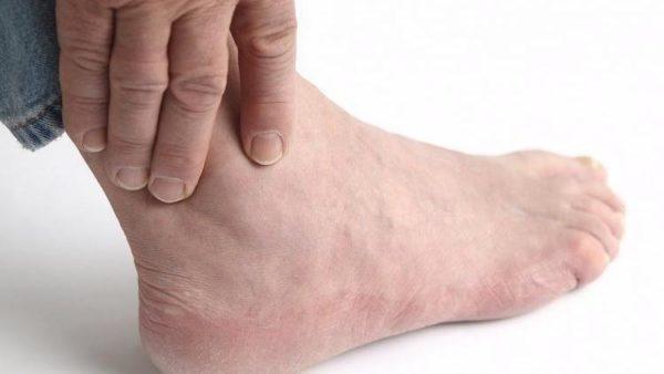 Гиперемия кожи над пораженным суставом клиники эндопротезирования коленного сустава в израиле