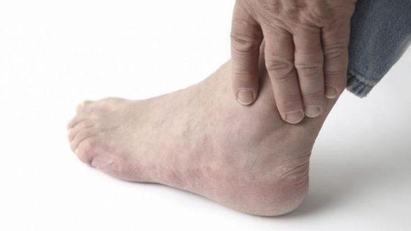Волнообразные боли голеностопных суставов блокада сустава это