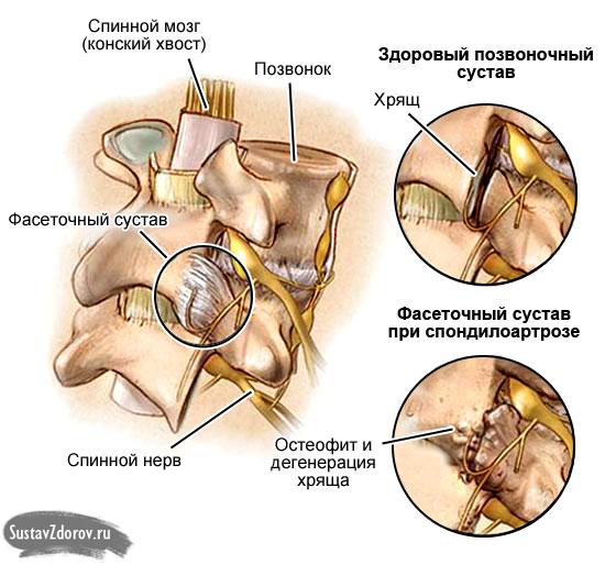 Спондилез пояснично-крестцового отдела позвоночника симптомы лечение профилактика