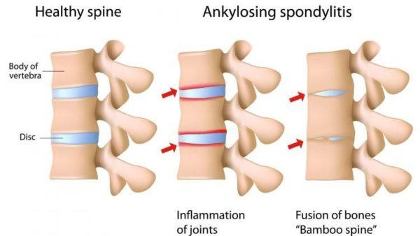 Вероятность возникновение различных суставных болей искривления осанки нарушения тянь ши при проблемах суставов