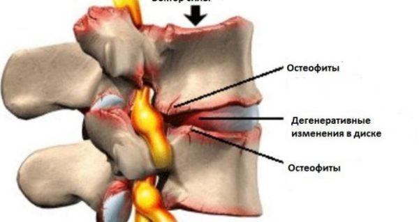 Остеофиты позвоночника и их лечение