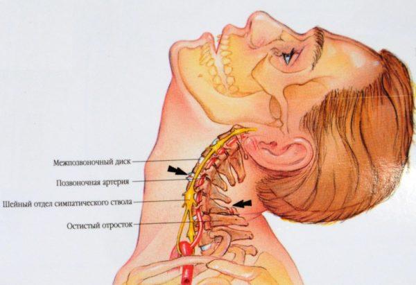 Перелом остистого отростка шейного позвонка симптомы диагностика и лечение