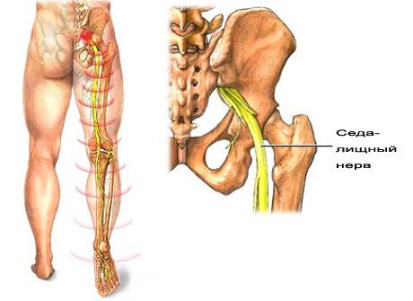Острая боль в коленном суставе при ходьбе аспирин при суставах