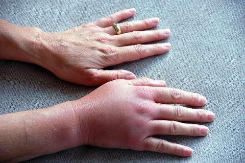 Отеки ног и рук при беременности: причины и лечение