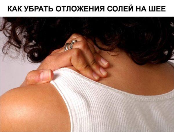отложения солей на шее как избавиться