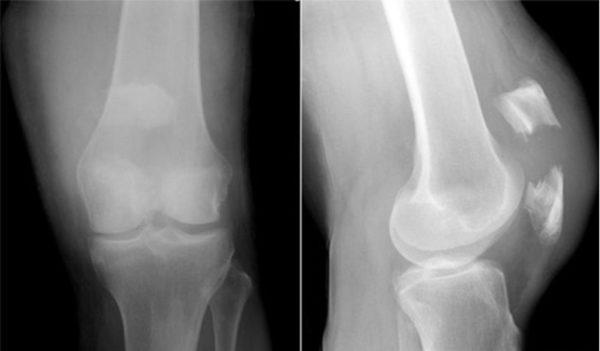 Перелом коленного сустава со смещением операция видео болят суставы рук и ног при беременности