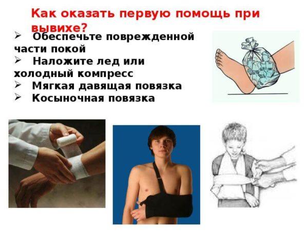 Смещение концов костей образующих сустав тазобедренные коленные суставы