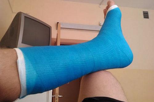 Полимерный гипс голеностопный сустав коленный сустав имплантанты форум