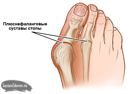 физиотерапия на тазобедренный сустав