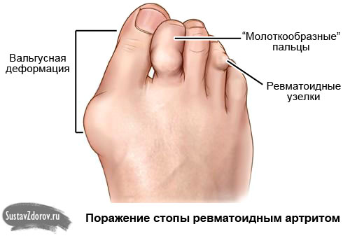 Артроз, артрит плюсне-фалангового сустава суставы бывают следующих видов