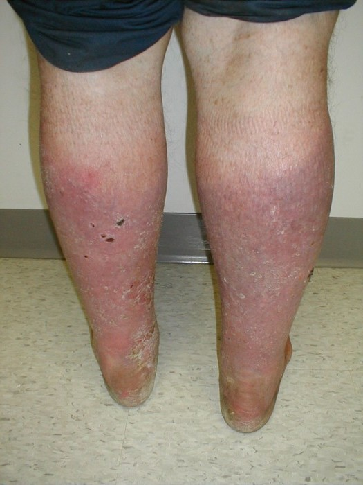 Почему гудят ноги ниже колен? Основные причины. Что делать?