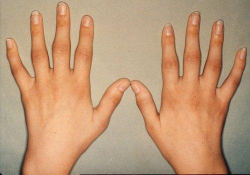 Отекают пальцы рук болят суставы массаж дисплазия тазобедренного сустава у новорожденных