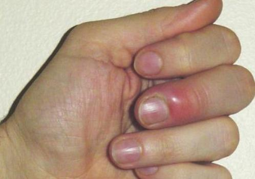 Аллергия распухают пальцы рук