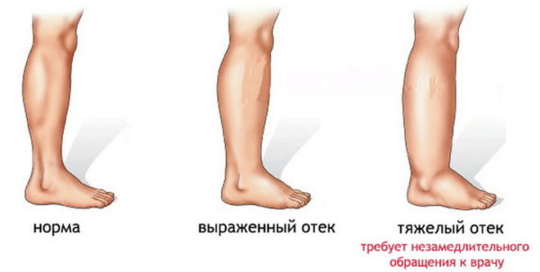 Причины отека правой ноги у женщин
