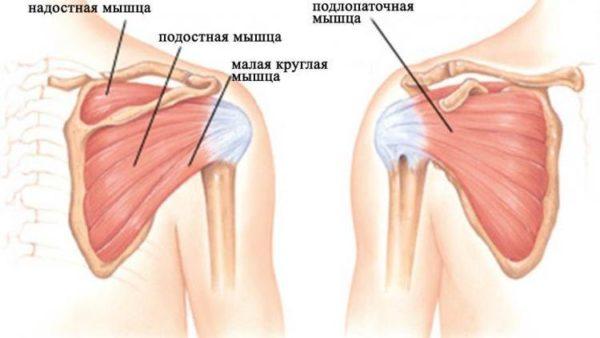 Отчего возникает периартрит плечевого сустава перелом тазобедренного сустава у кота