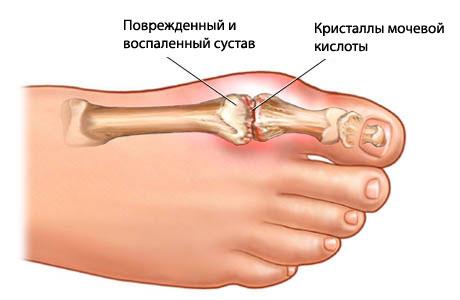 Болит сустав на ноге дифференциальная диагностика артралгии лучезапястного сустава рук