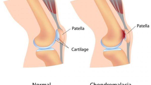 Режущая боль в колене при ходьбе в районе чашечки