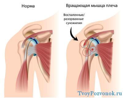 Боль в плечевых суставов саркома коленного сустава