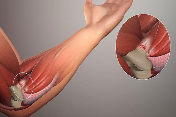 Миозит мышц руки - симптомы и лечение