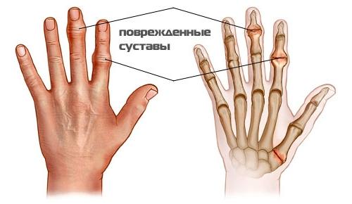 Воспаление суставов, лечение народными средствами растяжение лучезапястного сустава симптомы