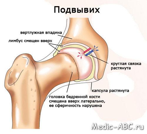 Стадии и симптомы заболевания