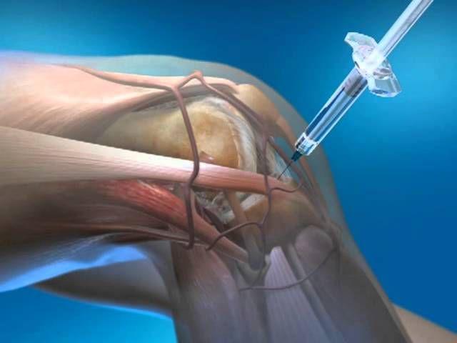 Пункция коленного сустава осложнения