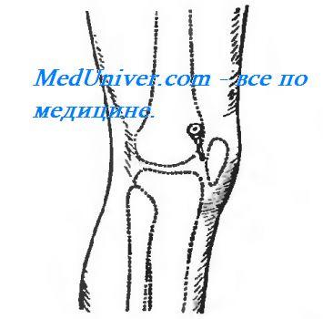 Последствия пункции коленного сустава - Лечение Суставов