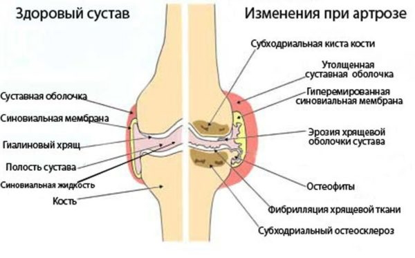 Первый пястно фаланговый сустав руки
