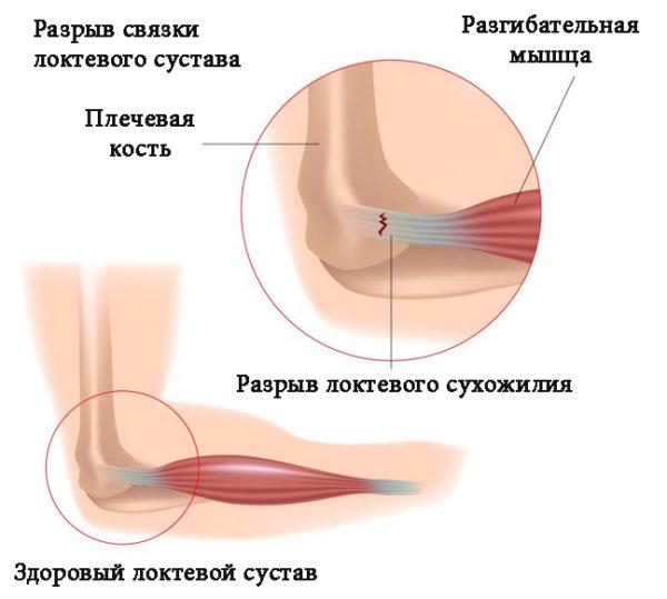 Растягивание локтевого сустава