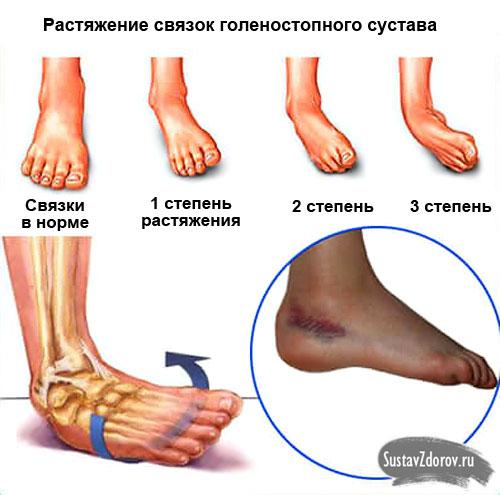 Растяжение связок голеностопного сустава 4 степени лечение суставов от солей