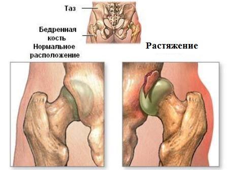Растяжение связок тазобедренного сустава болит сустав колена при беге