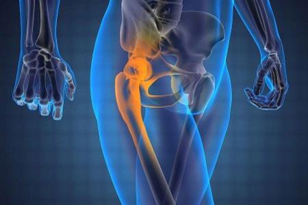 Как лечить связки тазобедренного сустава