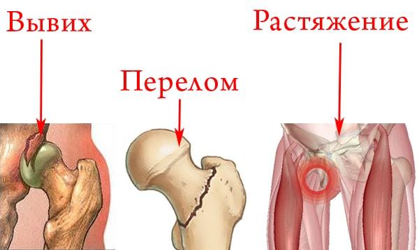 Разрыв связок тазобедренного сустава симптомы