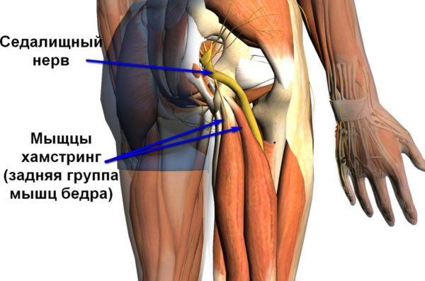 Растяжение связок тазобедренного сустава лечение
