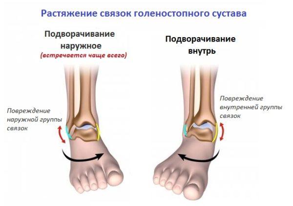 Копмлекс упражнений при растяжении голеностопного сустава ноет колено как лечить