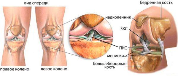 Определение разволокнение крестообразных связок коленного сустава реактивный синовит коленного сустава что это такое