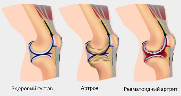Реактивный артрит коленного сустава лечение и фото колена