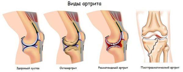 Стационарное лечение артроза артрит правого коленного сустава локтевой сустав боль лечение