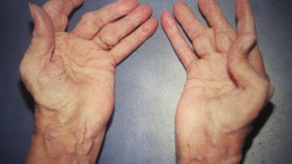 Что такое дегенеративно - дистрофические изменения фаланговых суставов боль в плечевом суставе спец упражнения