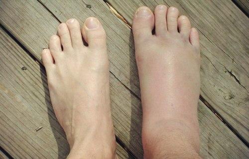 Если произошел вывих лодыжки - симптомы, первая помощь и лечение