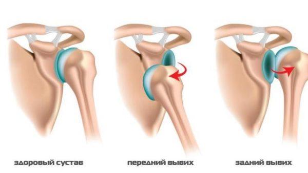 Механизм вывихов плечевого сустава излечение суставов нетрадиционными методами