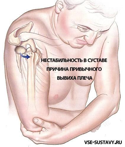 Вывих плечевого сустава ключица приподнята растяжение локтевого сустава лечение в домашних условиях