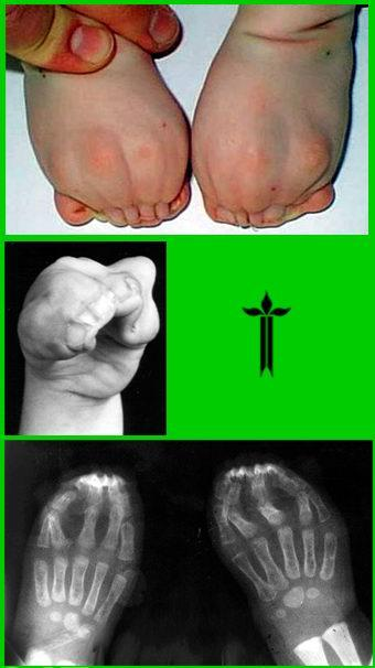 Синдактилия пальцев — классификация, операция