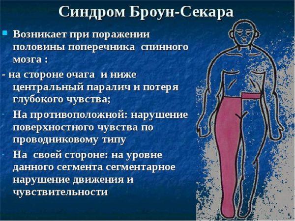 СИНДРОМ БРОУН-СЕКАРА - симптомы диагностика и лечение