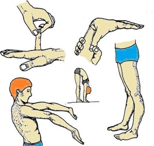 Синдром гиперэластичности суставов