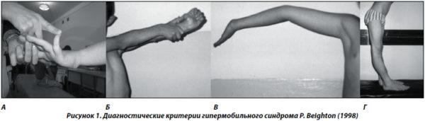 Синдром гипермобильности суставов дают группу инвалидности сгибание локтевого сустава