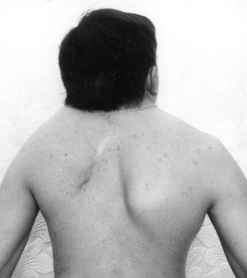 Клиппеля — Фейля синдром: фото, лечение, какие последствия могут быть? Синдром Шпренгеля - Фейля